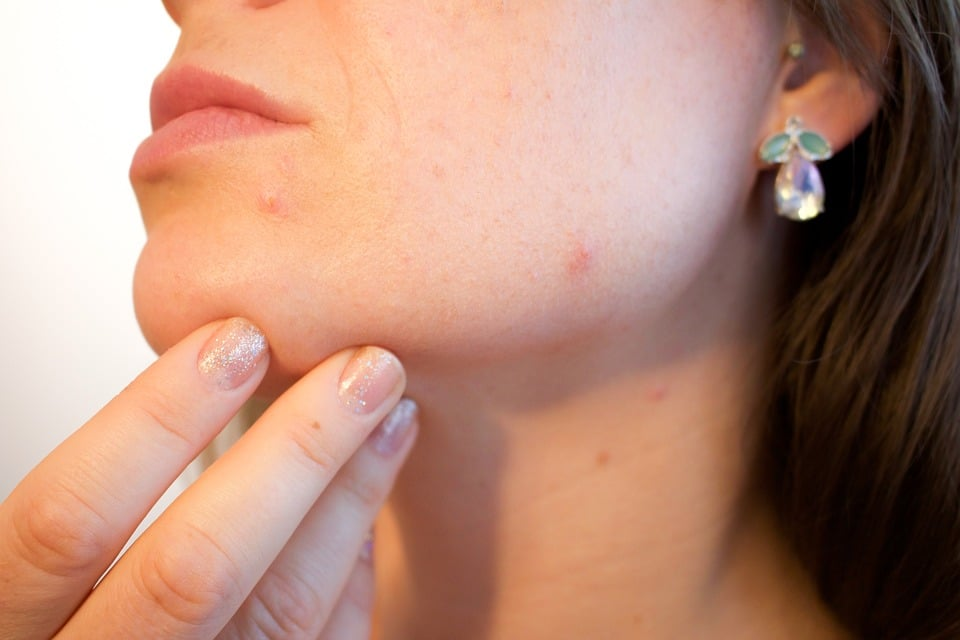 lady with acne problem
