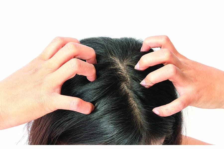 Itchy Scalp: The Common Causes and Treatment to Get Rid of It